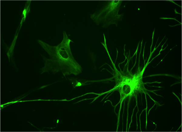 23 week human culture astrocyte stained for GFAP. ©Bruno Pascal