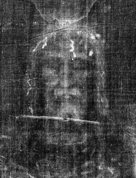This is an enhanced contrast view of the image of the face on the Shroud of Turin as it appears on a photographic negative. © 1978 Barrie M. Schwortz Collection, STERA, Inc. All Rights Reserved